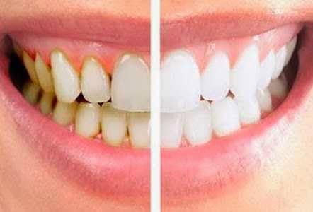 tips cara menghilangkan karang gigi dan plak gigi secara alami